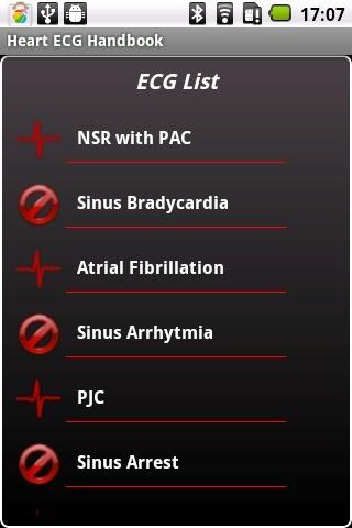 Heart ECG Handbook - Lite