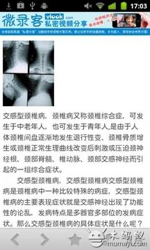 颈椎保健百科