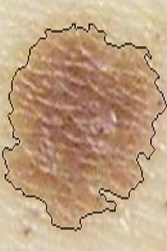 皮肤癌图像查看器