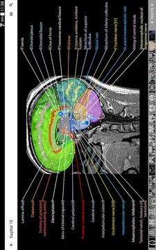 IMAIOS e-Anatomy