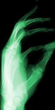 X射线扫描模拟器恶作剧