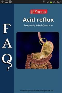 胃酸倒流的常见问题 FAQs in Acid Reflux