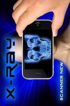 X-射线扫描仪亲