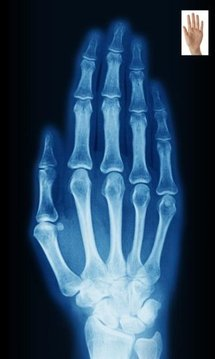 X-Ray Scan