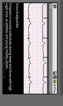Electrocardiogram ECG Types
