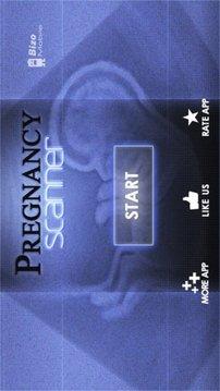 胎儿超声波扫描 Baby Pregnancy Ultrasound