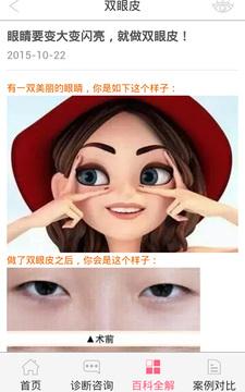 双眼皮截图
