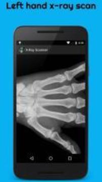X光扫描恶作剧截图